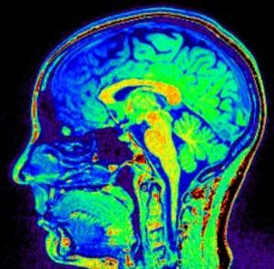 Gehirn einer Simultandolmetscherin